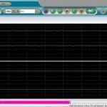 Electromyography display screen.